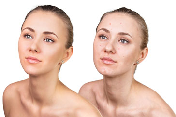 The best ways to get rid of acne scars fast for flawless skin questions concerning hydroquinone in terms of it being a carcinogen have also been addressed in the research problematic incidences have been shown when ccuart Choice Image