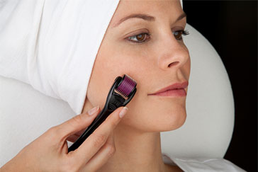 The best ways to get rid of acne scars fast for flawless skin you should do research into these procedures because particularly with fraxel there are many different kinds in addition there is a lot of downtime with ccuart Gallery