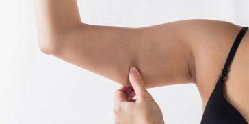 How To Lose Arm Fat Quickly And Easily From Home Without Gaining Muscle